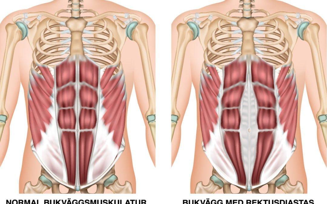 Delade magmuskler efter graviditet – Rektusdiastas