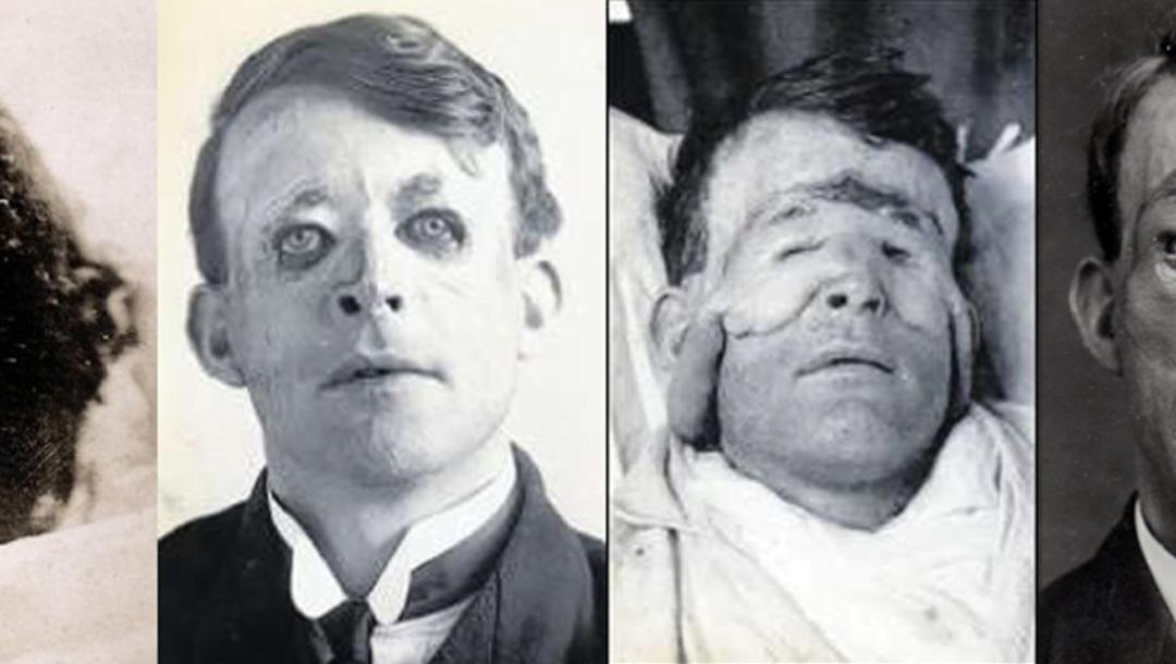 Tankar kring plastikkirurgi – Historiskt perspektiv